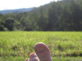 Kopkind big toe